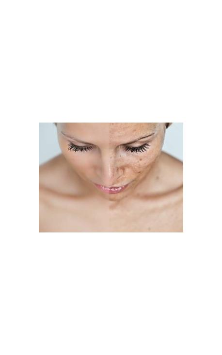 Visage/Cou (Photo-Facial Pigmentaire)