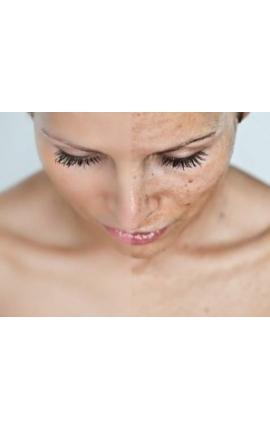 Visage/Cou (Photo-Facial Vasculaire)
