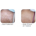 Shoulders/Upper Back (Photorejuvenation Acne) Pay At Appointment