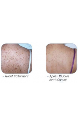 Shoulders/Upper Back (Photorejuvenation Acne)