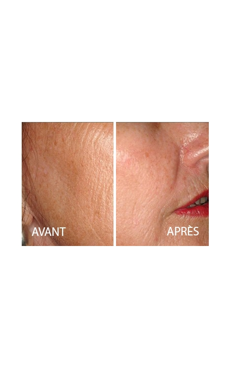 Face/Neck (Laser Resurfacing)