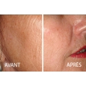 Face/Neck/Lower Neckline (Laser Resurfacing) Pay At Appointment