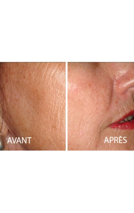 Face/Neck/Lower Neckline (Laser Resurfacing)
