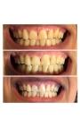 Blanchiment de Dent De base